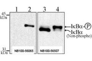 Immunoprecipitation (IP) image for anti-Nuclear Factor of kappa Light Polypeptide Gene Enhancer in B-Cells Inhibitor, alpha (NFKBIA) (pSer32), (pSer36) antibody (ABIN252664)