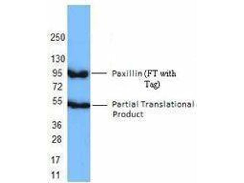 Western Blotting (WB) image for anti-Paxillin (PXN) antibody (ABIN2666109)