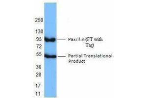 Western Blotting (WB) image for anti-Paxillin (PXN) antibody (ABIN2666109)