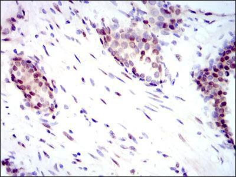Immunohistochemistry (IHC) image for anti-YAP1 antibody (Yes-Associated Protein 1) (ABIN969574)
