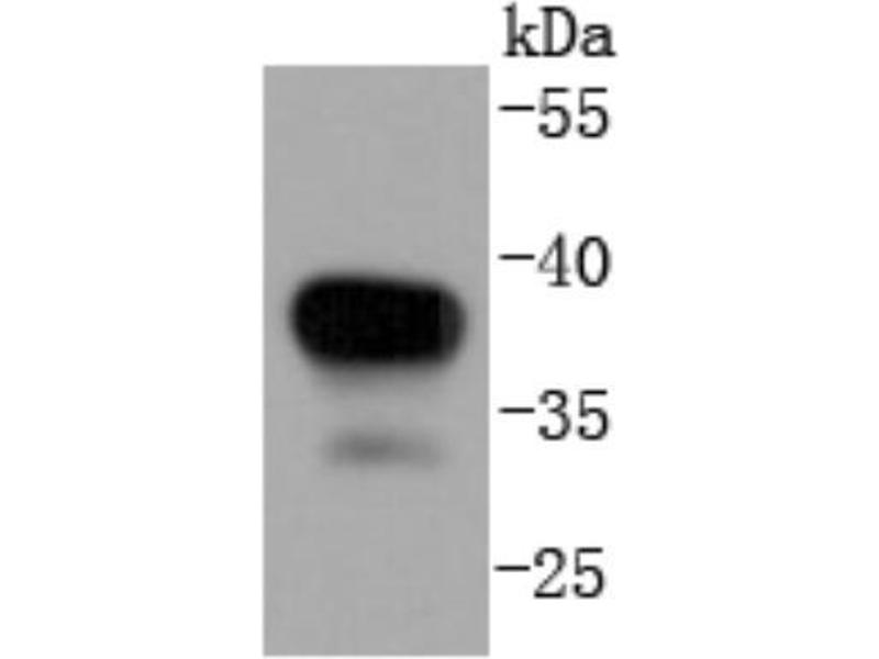 Western Blotting (WB) image for anti-Mitogen-Activated Protein Kinase Kinase 3 (MAP2K3) (C-Term) antibody (ABIN5950424)
