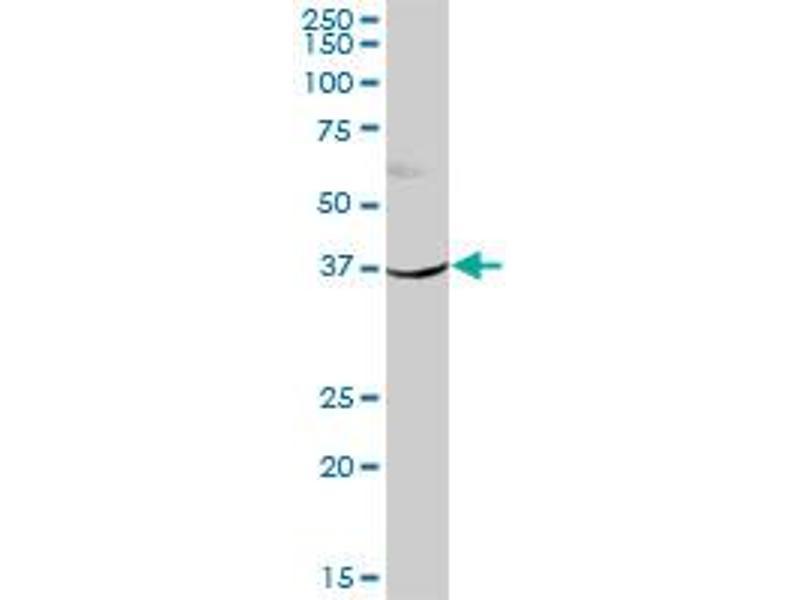 Image no. 2 for anti-Hydroxysteroid (11-Beta) Dehydrogenase 2 (HSD11B2) (AA 1-405) antibody (ABIN516705)