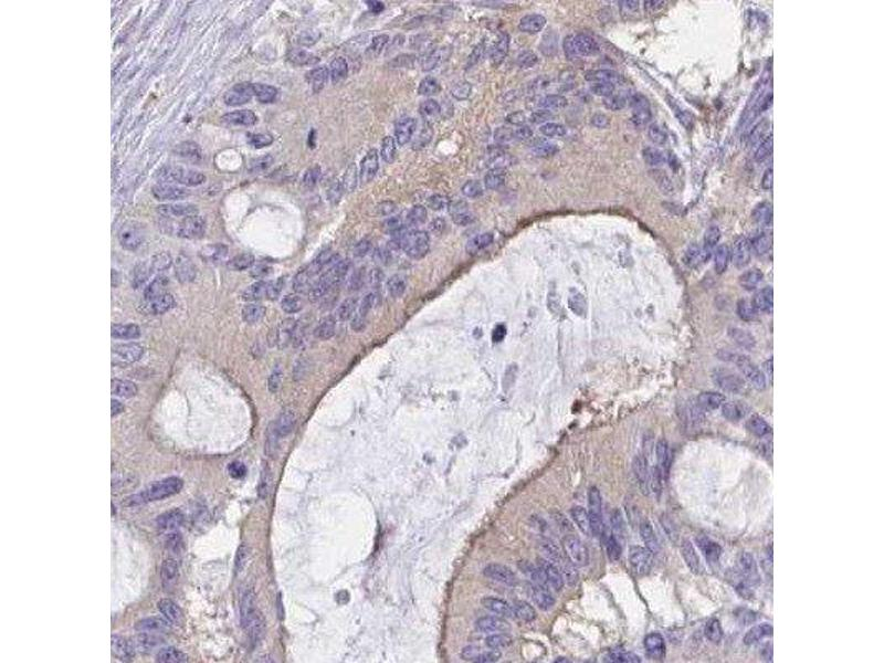Immunohistochemistry (Paraffin-embedded Sections) (IHC (p)) image for anti-CTD-3193O13.9 antibody (ABIN4265173)