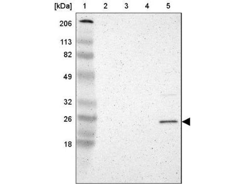 Western Blotting (WB) image for anti-RBP4 抗体 (Retinol Binding Protein 4, Plasma) (ABIN4349659)