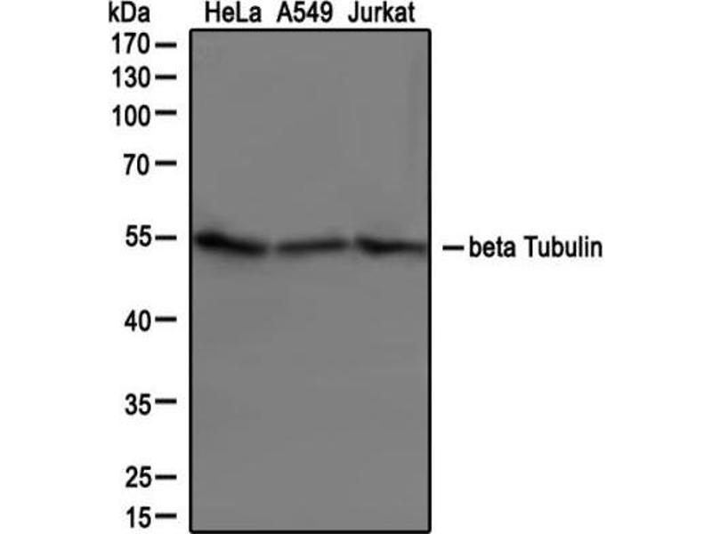 Western Blotting (WB) image for anti-Tubulin, beta (TUBB) (AA 1-100), (N-Term) antibody (ABIN269948)