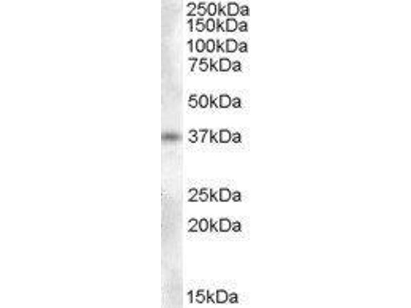 Western Blotting (WB) image for anti-Proenkephalin (PENK) antibody (ABIN449552)