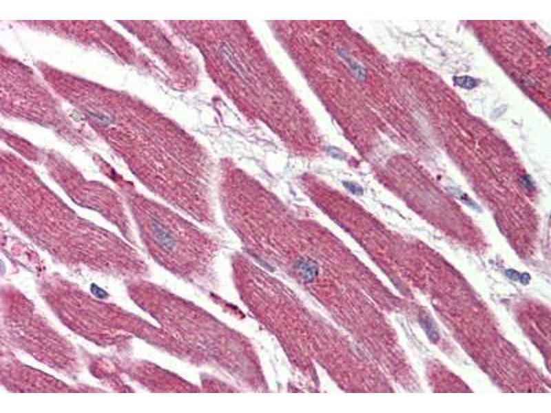Immunohistochemistry (Paraffin-embedded Sections) (IHC (p)) image for anti-Nuclear Receptor Subfamily 1, Group D, Member 2 (NR1D2) (Internal Region) antibody (ABIN410772)