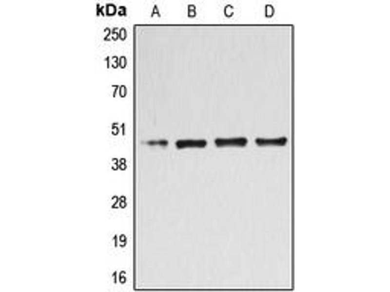 Western Blotting (WB) image for anti-UDP-Gal:betaGlcNAc beta 1,4- Galactosyltransferase, Polypeptide 3 (B4GALT3) (Center) antibody (ABIN2705558)