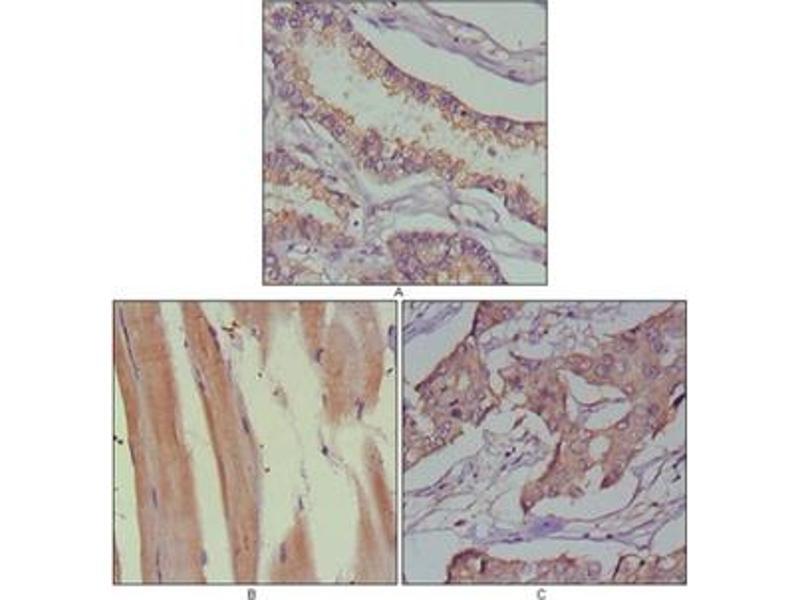 Immunohistochemistry (IHC) image for anti-MUSK antibody (Muscle, Skeletal, Receptor Tyrosine Kinase) (ABIN1108329)