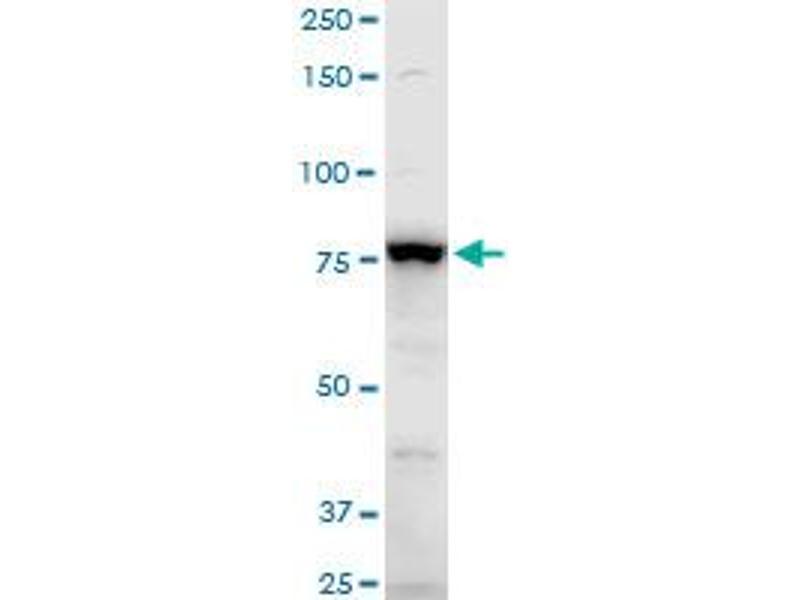 Western Blotting (WB) image for anti-Adducin 3 (Gamma) (ADD3) (AA 462-560) antibody (ABIN559788)