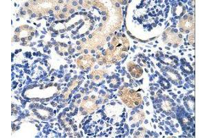Image no. 1 for anti-EMG1 Nucleolar Protein Homolog (S. Cerevisiae) (EMG1) (AA 51-100) antibody (ABIN6736233)