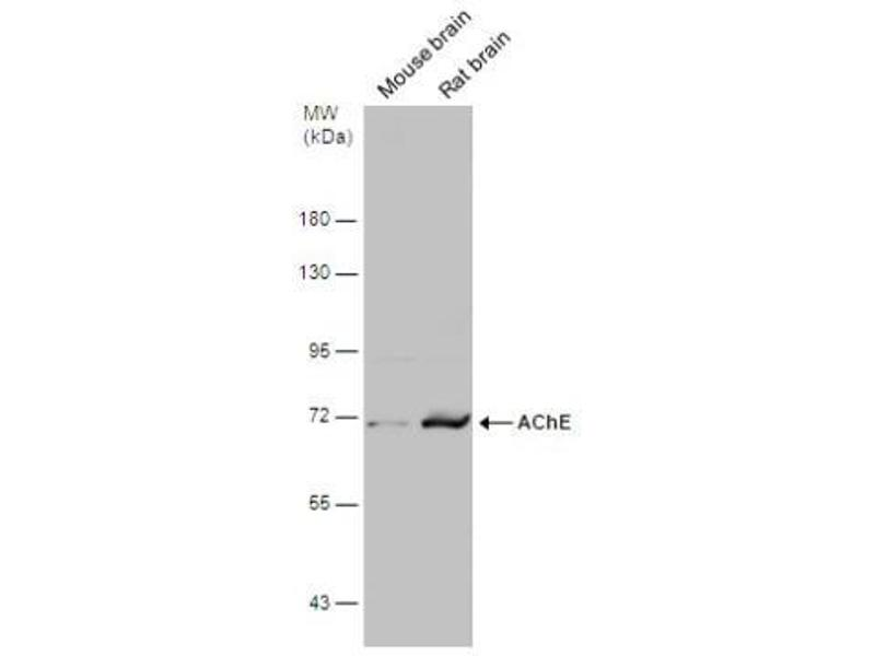 Western Blotting (WB) image for anti-Acetylcholinesterase (AChE) (C-Term) antibody (ABIN441336)