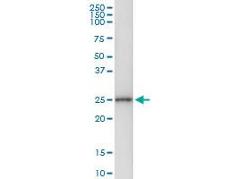 Immunoprecipitation (IP) image for anti-Ciliary Neurotrophic Factor (CNTF) (AA 1-200), (full length) antibody (ABIN514508)