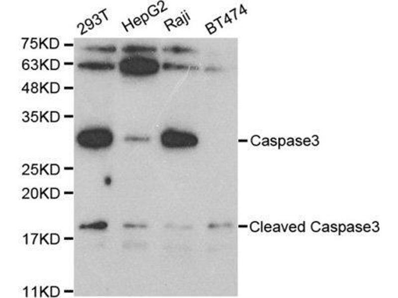 Western Blotting (WB) image for anti-Caspase 3, Apoptosis-Related Cysteine Peptidase (CASP3) antibody (ABIN3023067)