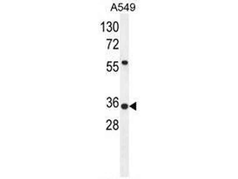 Western Blotting (WB) image for anti-Sosondowah Ankyrin Repeat Domain Family Member D (SOWAHD) (AA 203-233), (C-Term) antibody (ABIN950429)