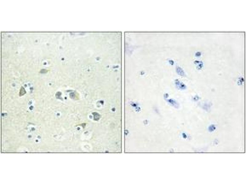 Immunohistochemistry (IHC) image for anti-Growth Arrest-Specific 6 (GAS6) (AA 291-340) antibody (ABIN1533886)