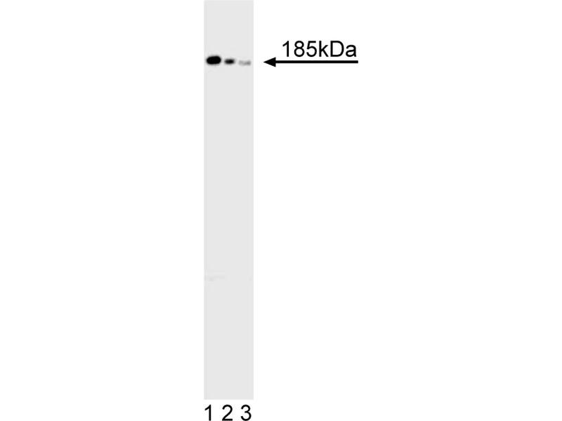 Western Blotting (WB) image for anti-Deleted in Colorectal Carcinoma (DCC) antibody (ABIN967443)
