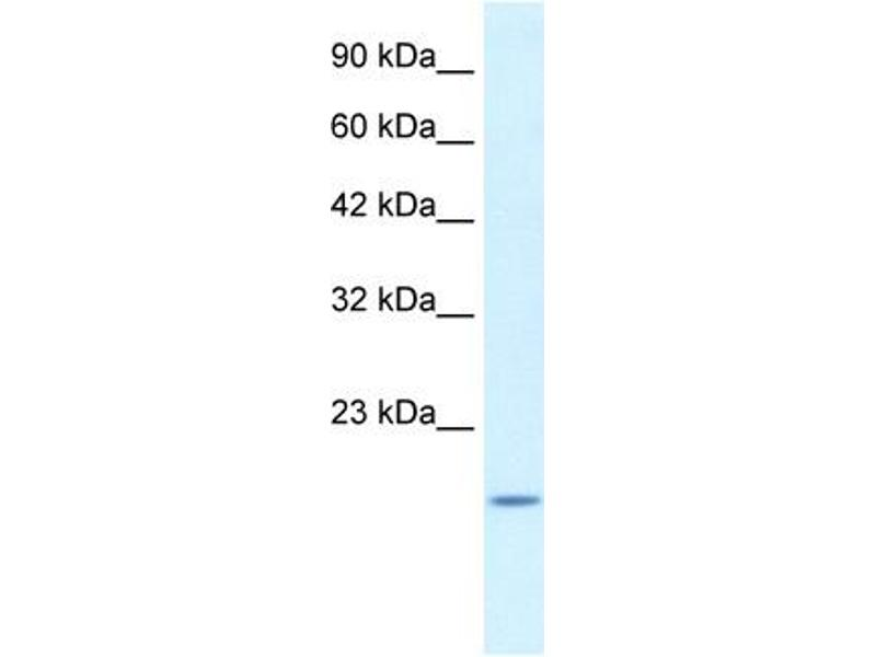 Western Blotting (WB) image for anti-BAX antibody (BCL2-Associated X Protein) (N-Term) (ABIN2792125)