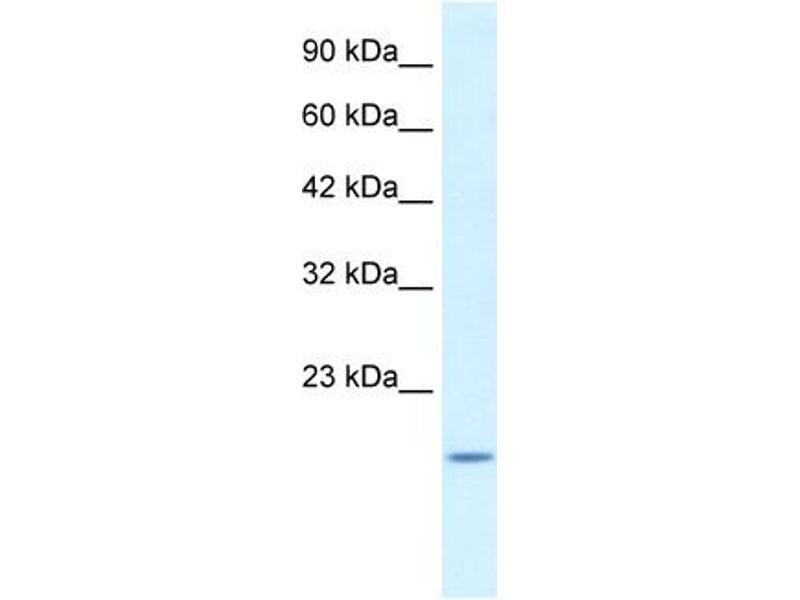 Western Blotting (WB) image for anti-BCL2-Associated X Protein (BAX) (N-Term) antibody (ABIN2792125)