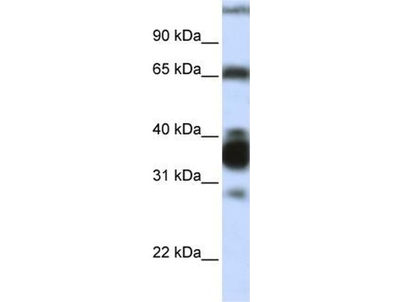 Western Blotting (WB) image for anti-Arginase, Liver (ARG1) (N-Term) antibody (ABIN2782309)