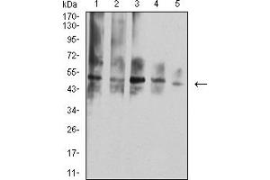 Image no. 4 for anti-Tumor Necrosis Factor Receptor Superfamily, Member 10d, Decoy with Truncated Death Domain (TNFRSF10D) (AA 56-211) antibody (ABIN5684099)