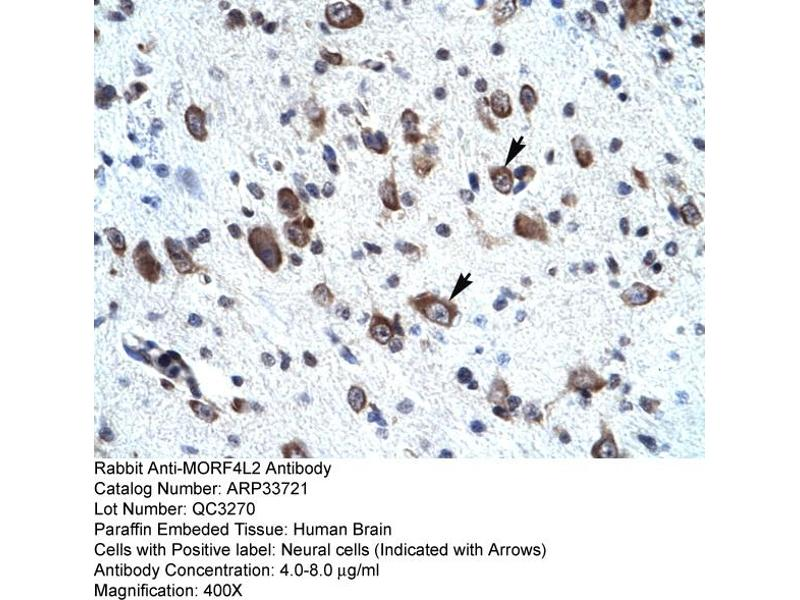 Immunohistochemistry (IHC) image for anti-Mortality Factor 4 Like 2 (MORF4L2) (N-Term) antibody (ABIN2778086)