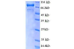 Image no. 1 for GDP Dissociation Inhibitor 2 (GDI2) (AA 1-441), (partial) protein (GST tag) (ABIN5712095)
