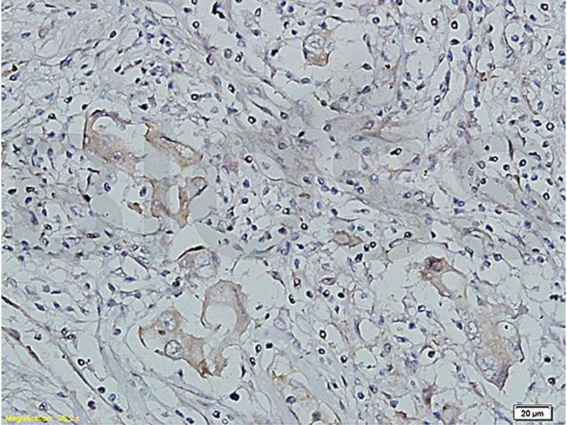 Immunohistochemistry (IHC) image for anti-Insulin-Like Growth Factor 1 Receptor (IGF1R) (AA 260-290) antibody (ABIN726575)