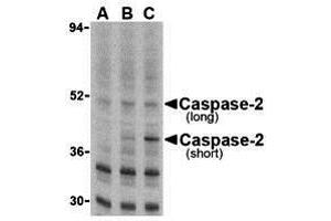 Image no. 2 for anti-Caspase 2, Apoptosis-Related Cysteine Peptidase (CASP2) (N-Term) antibody (ABIN1031296)