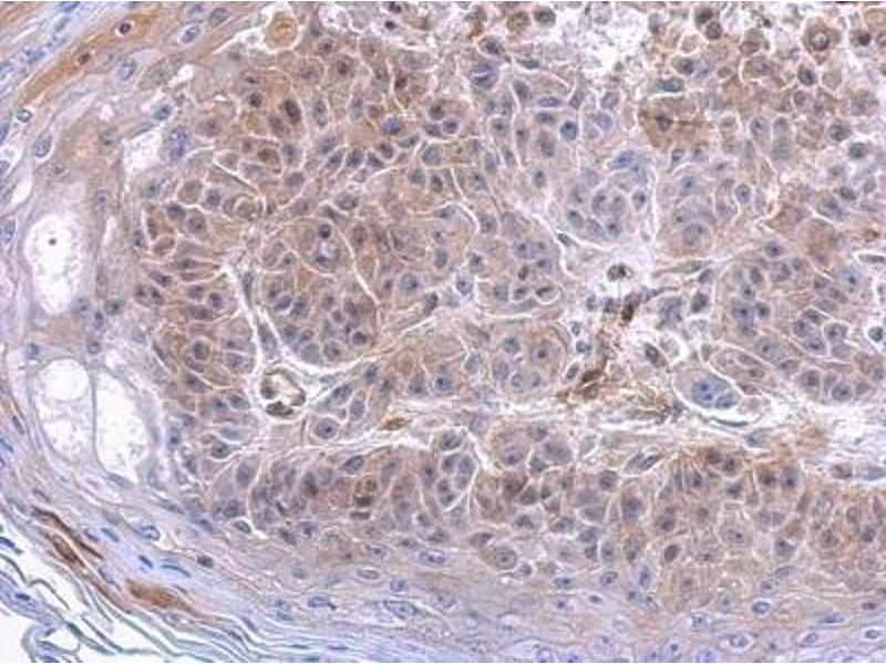 Immunohistochemistry (Paraffin-embedded Sections) (IHC (p)) image for anti-Complement Component 3 (C3) (C-Term) antibody (ABIN442056)