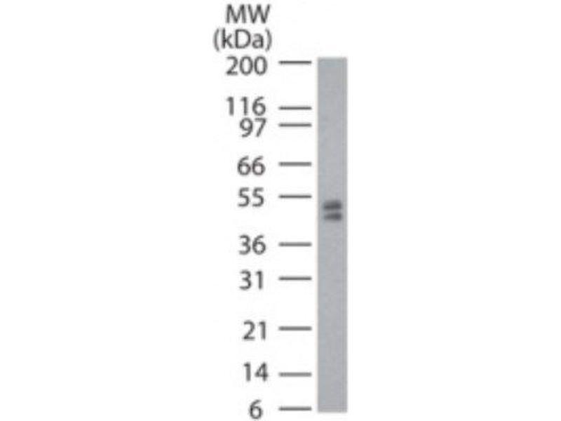Western Blotting (WB) image for anti-tRNA Aspartic Acid Methyltransferase 1 (TRDMT1) antibody (ABIN268327)
