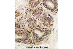 Image no. 1 for anti-Cancer Susceptibility Candidate 3 (CASC3) (pTyr181) antibody (ABIN544021)