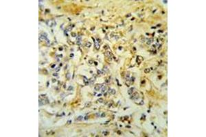Image no. 2 for anti-Limb Region 1 Homolog (Mouse)-Like (LMBR1L) (AA 460-489), (C-Term) antibody (ABIN953194)