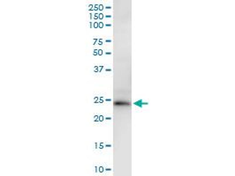 Immunoprecipitation (IP) image for anti-Kallikrein 2 (KLK2) (AA 1-223), (full length) antibody (ABIN517350)