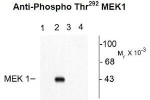 Western Blotting (WB) image for anti-MAP2K1 antibody (Mitogen-Activated Protein Kinase Kinase 1) (pThr292) (ABIN2441124)