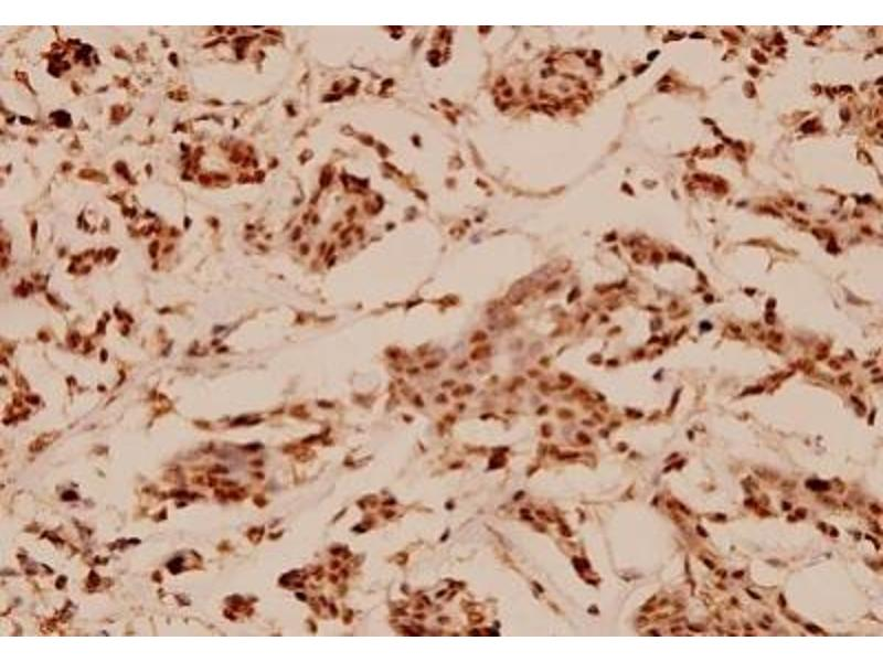 Immunohistochemistry (Paraffin-embedded Sections) (IHC (p)) image for anti-Nuclear Receptor Co-Repressor 1 (NCOR1) antibody (ABIN407956)