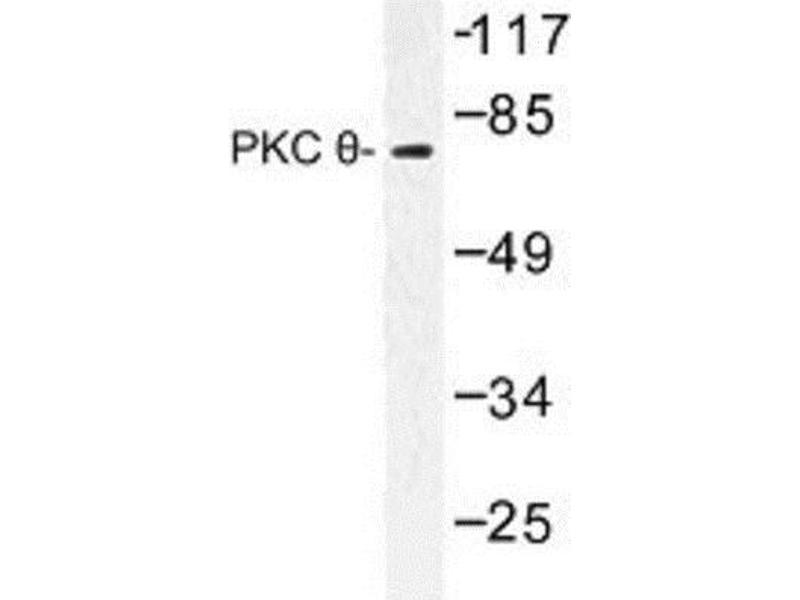 Western Blotting (WB) image for anti-Protein Kinase C, theta (PRKCQ) antibody (ABIN314754)