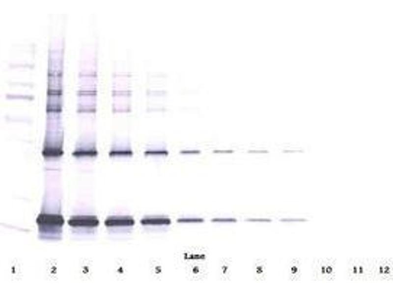 image for anti-Ciliary Neurotrophic Factor (CNTF) antibody (ABIN465749)