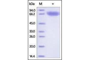 Image no. 1 for Transferrin Receptor (p90, CD71) (TFRC) (AA 89-760) (Active) protein (His tag) (ABIN2180829)