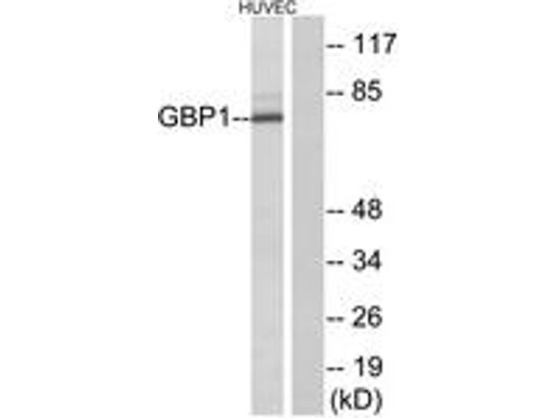 Western Blotting (WB) image for anti-Guanylate Binding Protein 1, Interferon-Inducible (GBP1) (AA 71-120) antibody (ABIN1534411)