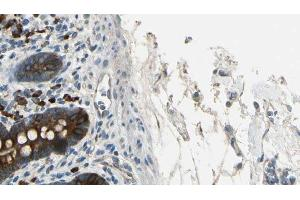 Image no. 1 for anti-Breakpoint Cluster Region (BCR) (pTyr360) antibody (ABIN6256715)