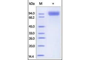 Image no. 1 for Membrane Metallo-Endopeptidase (MME) (AA 52-750) protein (ABIN2181505)