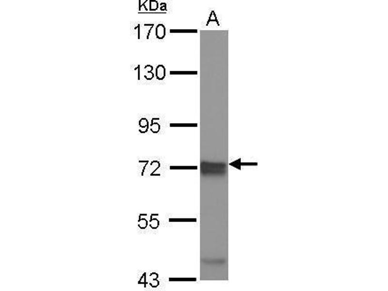 Western Blotting (WB) image for anti-Inhibitor of kappa Light Polypeptide Gene Enhancer in B-Cells, Kinase epsilon (IKBKE) (Center) antibody (ABIN2856120)