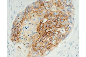 Immunohistochemistry (IHC) image for anti-Epidermal Growth Factor Receptor (EGFR) antibody (ABIN265742)
