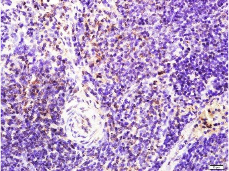 Immunohistochemistry (Paraffin-embedded Sections) (IHC (p)) image for anti-LAT antibody (Linker For Activation of T Cells) (pTyr161) (ABIN1386362)