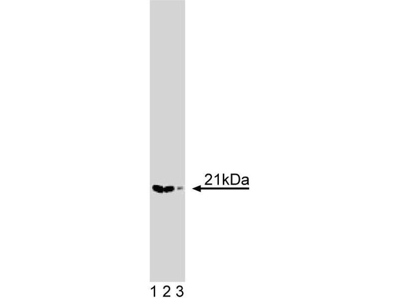 Western Blotting (WB) image for anti-ARPC3 antibody (Actin Related Protein 2/3 Complex, Subunit 3, 21kDa) (AA 10-118) (ABIN968781)