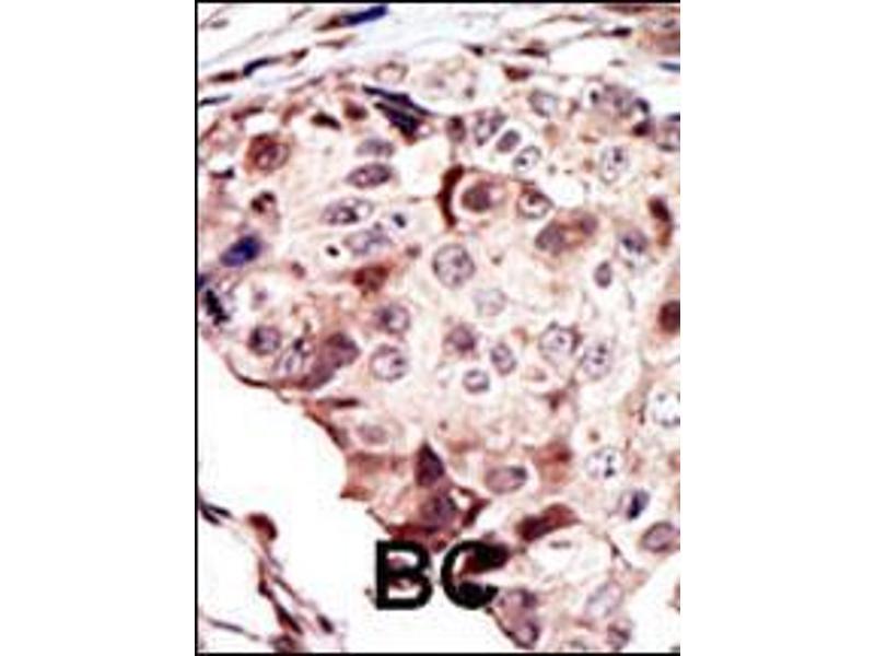 Immunohistochemistry (IHC) image for anti-RYK Receptor-Like Tyrosine Kinase (RYK) (AA 160-190) antibody (ABIN392050)