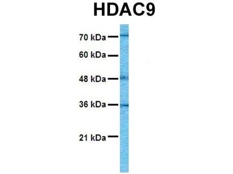Western Blotting (WB) image for anti-Histone Deacetylase 9 (HDAC9) (C-Term) antibody (ABIN2775576)