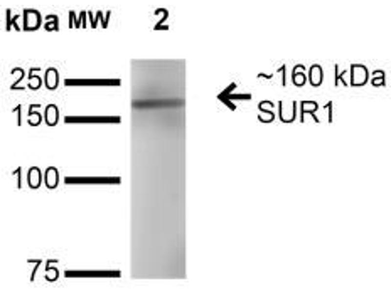 Western Blotting (WB) image for anti-ATP-Binding Cassette, Sub-Family C (CFTR/MRP), Member 8 (ABCC8) (AA 1548-1582) antibody (ABIN5079903)