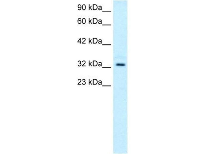 Western Blotting (WB) image for anti-T-Cell Acute Lymphocytic Leukemia 1 (TAL1) (C-Term) antibody (ABIN2792541)